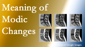 Pflugerville Wellness Center sees many back pain and neck pain patients who bring their MRIs with them to the office. Modic changes are often seen.