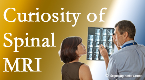 Pflugerville MRIs for spinal stenosis may be revealing…or puzzling.