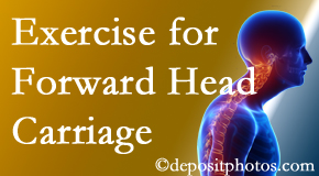 Pflugerville chiropractic treatment of forward head carriage is two-fold: manipulation and exercise.