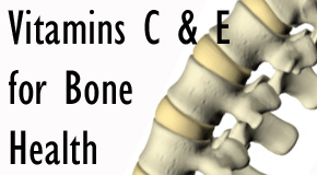 vitamin c & e for bone health image